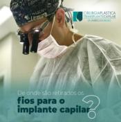 Dr.Fabricio- implante-capilar